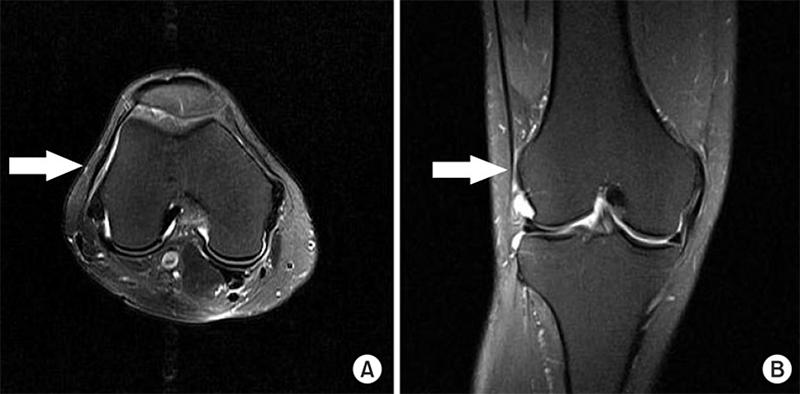 MRI Scan of a Knee